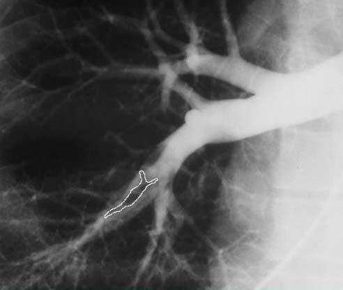 Тромбоэмболия на рентгеновском снимке
