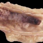 Обтурирующий тромб