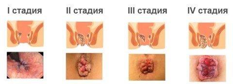 Стадии тромбоза геморроидального узла