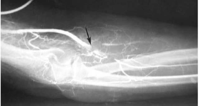 Диагностика тробоза рук рентген