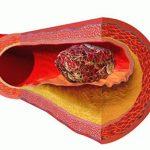 Тромбы в крови причины
