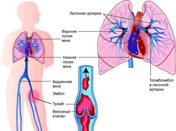 Причины тромбоэмболии легочной артерии