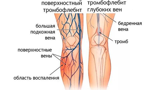 Виды тромбофлебита ног