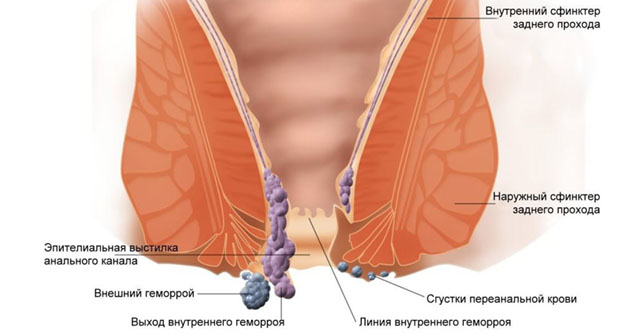 Тромбоз геморроидального узла: стадии и методы лечения заболевания