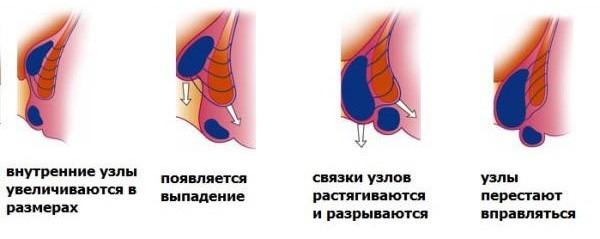 Стадии геморроидальных узлов