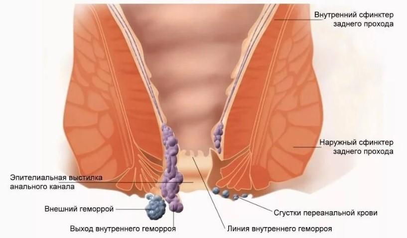 Беременность наружный геморрой тромбоз