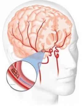 Причины, диагностика и лечение гипертензивной энцефалопатии