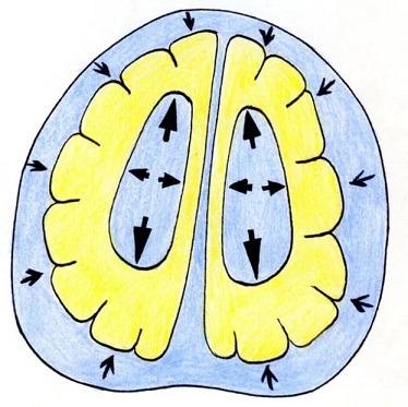Причины, диагностика и лечение гипертензионно гидроцефального синдрома у новорожденных, детей и взрослых
