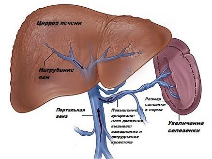 Что такое синдром портальной гипертензии и каковы его особенности при циррозе печени?
