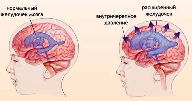 Причины развития и признаки повышенного давления при синдроме внутричерепной гипертензии