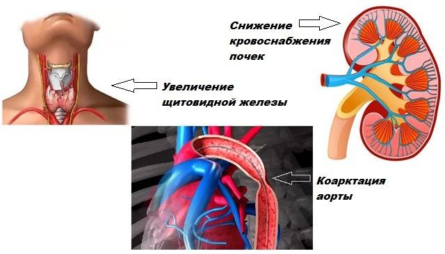 Факторы появления симптоматической гипертензии