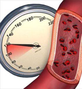 Степени и группы риска гипертонической болезни