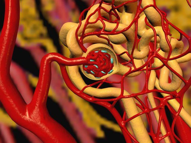 Злокачественная артериальная гипертония