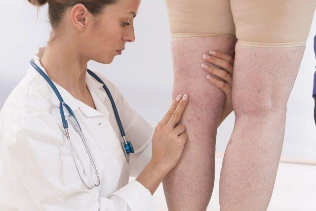 Что такое варикозное расширение вен на ногах - эффективные методы лечения и профилактики