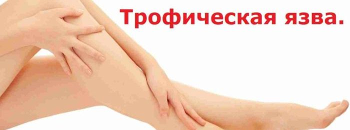 Варикозная язва, как и следует из названия, представляет собой дермальный дефект, развивающийся в результате нарушения трофики (питания) определенного участка кожи. Страдают, как правило, нижние конечности (стопы, голени, бедра — ноги). Реже слизистые оболочки. По характеру и глубине проникновения патологического процесса трофические (варикозные) язвы варьируются. Возможно поверхностное поражение дермального слоя, в таком случае страдает только эпидермис, а возможно и глубокое разрушение тканей, вплоть до достижения гиподермы (внутреннего слоя кожи). Во всех случаях язвенные дефекты представляют существенную опасность для здоровья. Важно! Характерной чертой рассматриваемого процесса является почти полная невозможность его самостоятельного регресса, за исключением редких случаев. Чтобы трофическая язва прошла, требуется устранение первопричины, вызвавшей ее. Тем самым, она всегда вторична по отношению к основному заболеванию. Что же нужно знать о столь непростой болезни? Причины появления и стадии заболевания Варикозная язва считается полиэтиологическим и многофакторным заболеванием. Это означает, что в формировании дефектов участие принимает целая группа факторов. Каковы же основные причины становления проблемы? ● В первую очередь, это облитерирующий атеросклероз нижних конечностей. В ходе патологического процесса наблюдается отложение холестерина на стенки кровеносных структур. Образуются так называемые бляшки. Они вызывают окклюзию (сужение) просвета артерий, провоцируют ухудшение питания тканей. Кожа в месте недостаточного снабжения кровью становится сухой, покрывается язвами. ● Варикозное расширение вен, или, иначе, венозно-лимфатическая недостаточность. Трофические язвы при варикозе формируются наиболее часто. Все дело в том, что при этом заболевании наступает ишемия тканей. Венозная кровь по причине нарушения работы клапанов сосудов не может оттечь от тканей, артериальная не может поступить к «месту назначения». Наступают гипоксия и ишемия, обусловленные недос