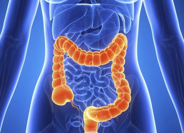 Варикозное расширение вен кишечника