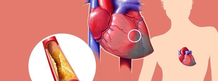 Инфаркт миокарда — общая классификация сердечной патологии
