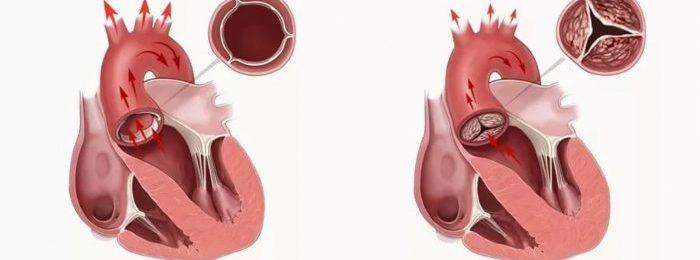 Порок сердца аортальный: виды, причины, лечение