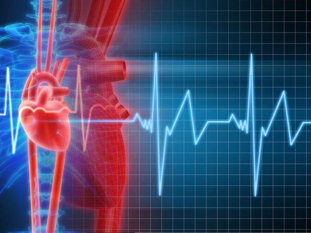 Особенности лечения тахикардии при остеохондрозе