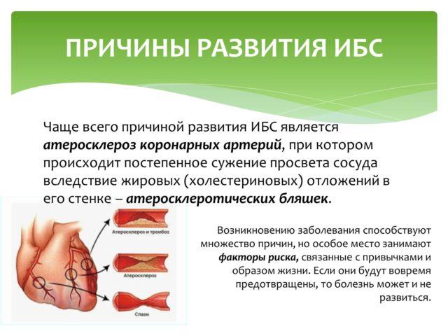 проблемы при остром инфаркте миокарда