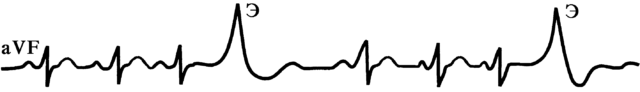 Квадригеминия на экг