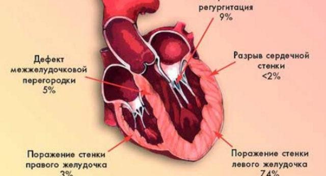 Что такое трансмуральный инфаркт миокарда и чем опасна его острая форма?