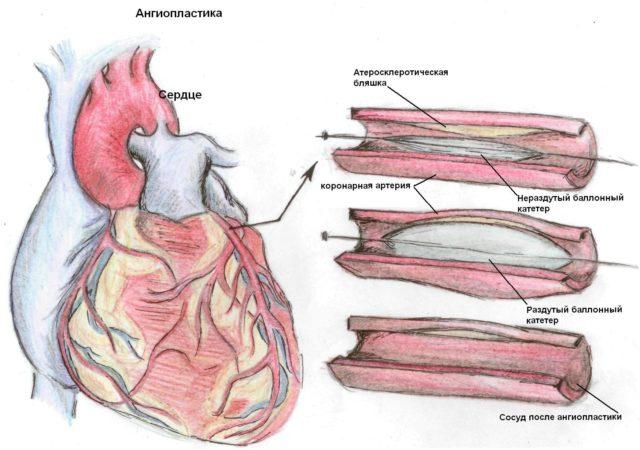 Острый инфаркт миокарда - Болезни кардиологии