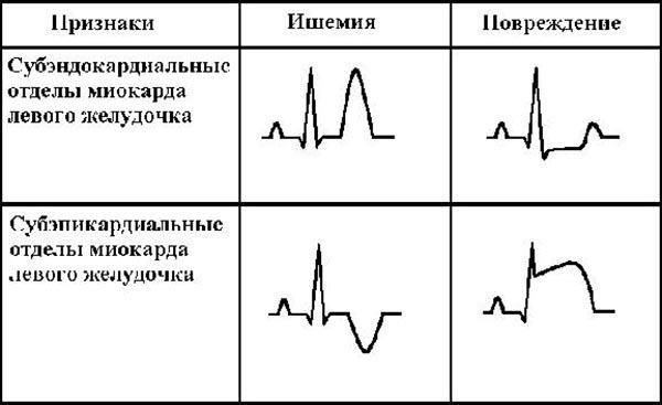 Инфаркт миокарда в зоне левого желудочка: диагностика и лечение патологии