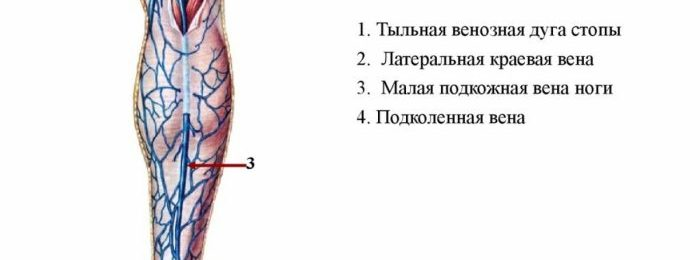 Развитие тромбоза подколенной вены: причины и симптомы, диагностика и лечение