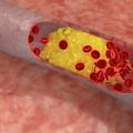 Причины, симптомы и лечение окклюзирующего тромбоза