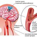 Образование тромба в сонной артерии: причины, опасность, диагностика и лечение