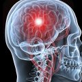 Инсульт у молодых людей: причины патологии, лечение и прогнозы