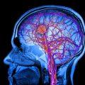 Понятие и особенности лакунарного инсульта