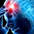 Особенности правостороннего инсульта головного мозга