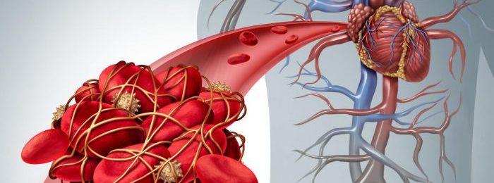 Образование тромба в сердце: причины, симптомы и тактики лечения