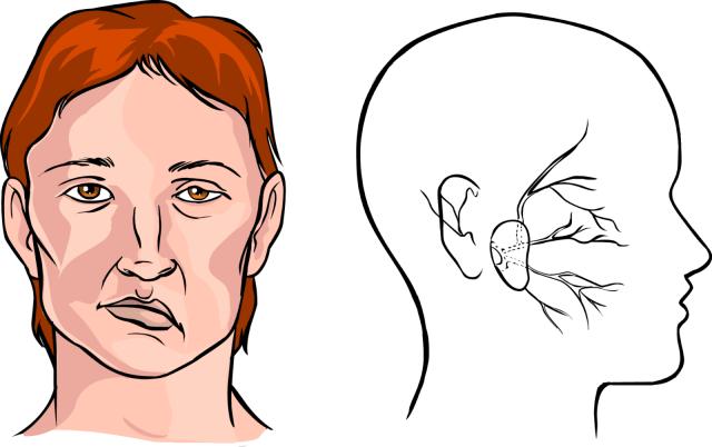 Парализовало левую сторону после инсульта: причины и способы восстановления