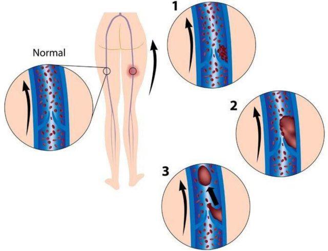 Флотирующий тромб: опасность патологии, причины и признаки тромбоза, тактика лечения