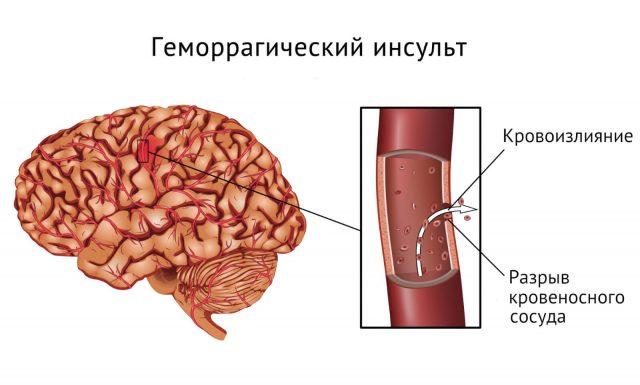 Понятие, признаки и последствия стволового инсульта