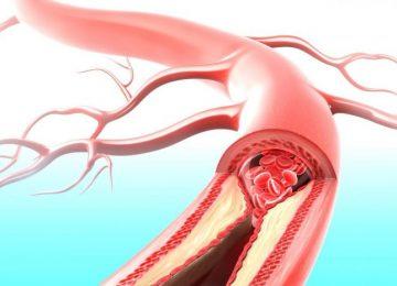 Развитие атеротромботического инсульта: причины, симптоматика и лечение