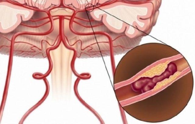Как распознать развитие микроинсульта, его симптомы, признаки и диагностика
