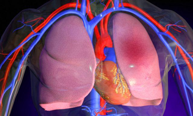 В чем опасность сердечного кашля?