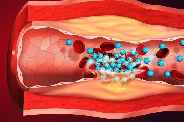 Признаки, лечение и прогноз при тромбозе нижней полой вены