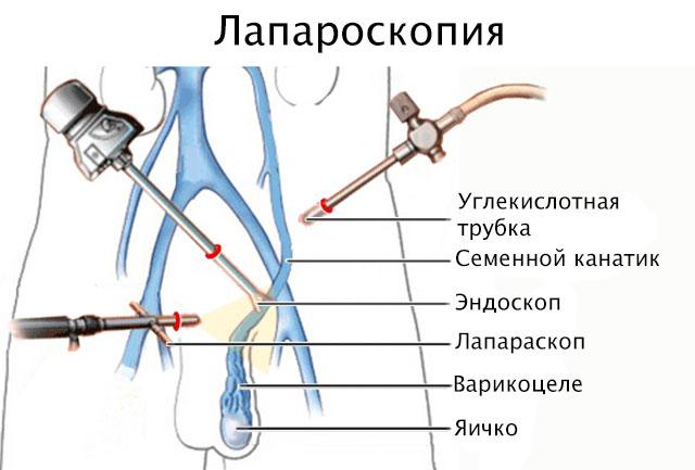Лапараскопия
