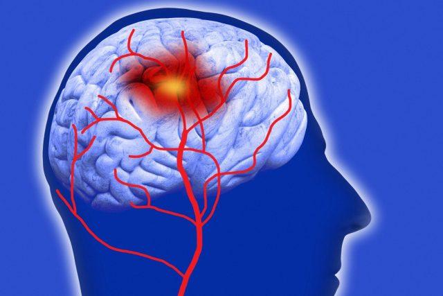 Причины, признаки и терапия кардио-тромбоэмболического инсульта