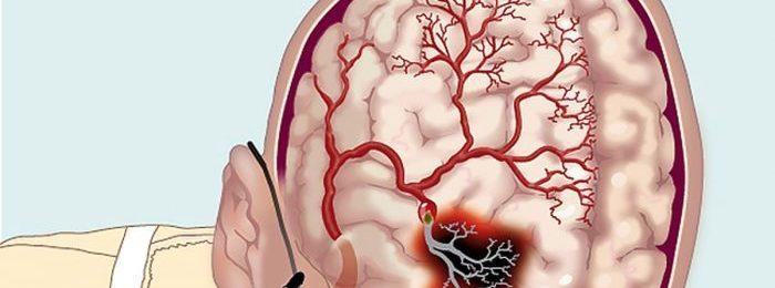 Прогноз выздоровления после геморрагического инсульта