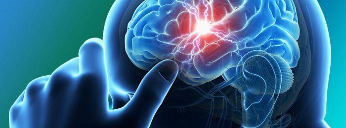 Использование препаратов в лечении инсульта: острый период и восстановительная терапия