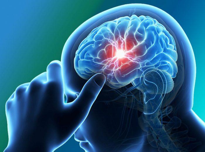 Терапия лекарственными препаратами при инсульте восстановительный период и профилактика рецидива