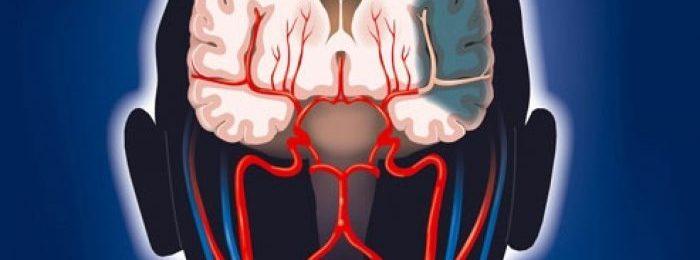 Особенности и лечение повторного инсульта