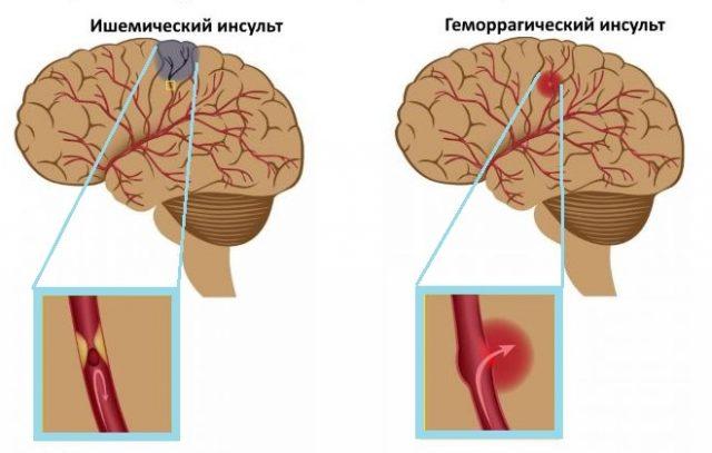 Отличия симптомов и патогенеза ишемического и геморрагического инсульта