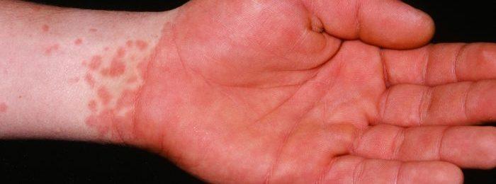 Болезнь Кавасаки: развитие, причины, диагностика и лечение